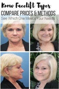 Know Facelift Types, Prices & if it's Suited For You