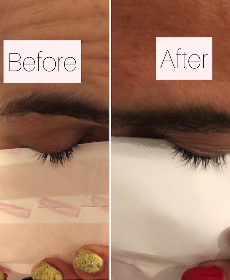 Nutriol serum lash growth
