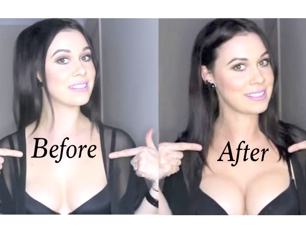 Cleavage enhancement contouring before and after