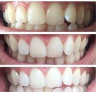 Teeth Before After AP24 toothpaste