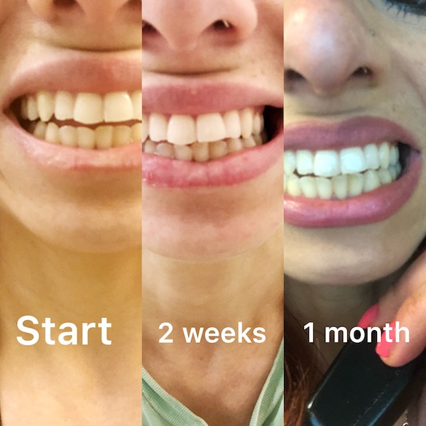Teeth start to 3 weeks after use of AP24 toothpaste