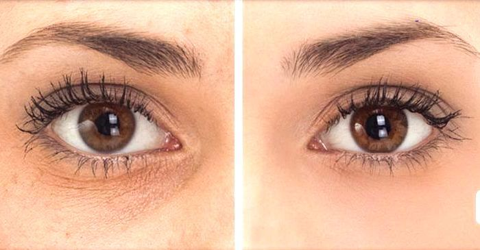 Under eye wrinkles before and after